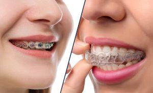 LVL Orthodontics